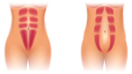 Find den gode løsning på Delte mavemuskler